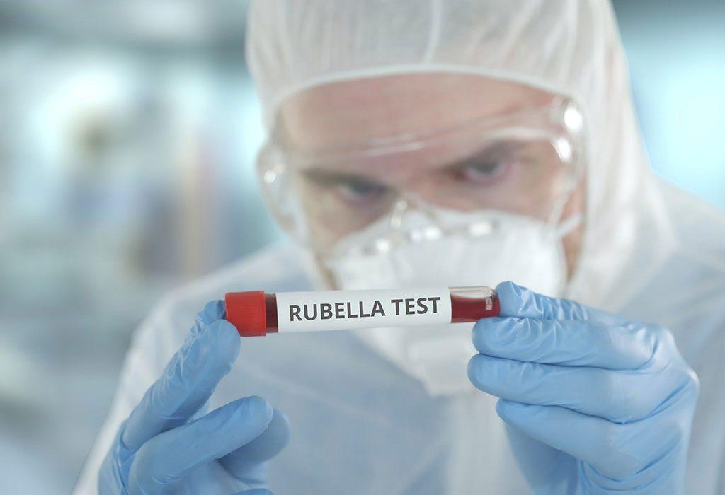 Test różyczki